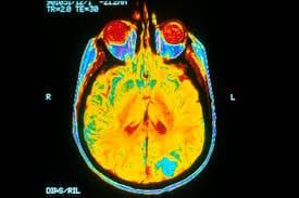 Brain Imaging Tests