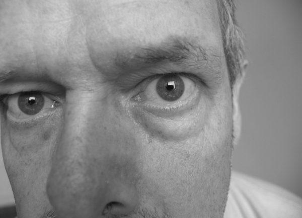 Symptoms Of Bags Under Eyes