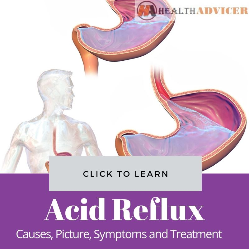 Acid Reflux: Causes, Picture, Symptoms and Treatment