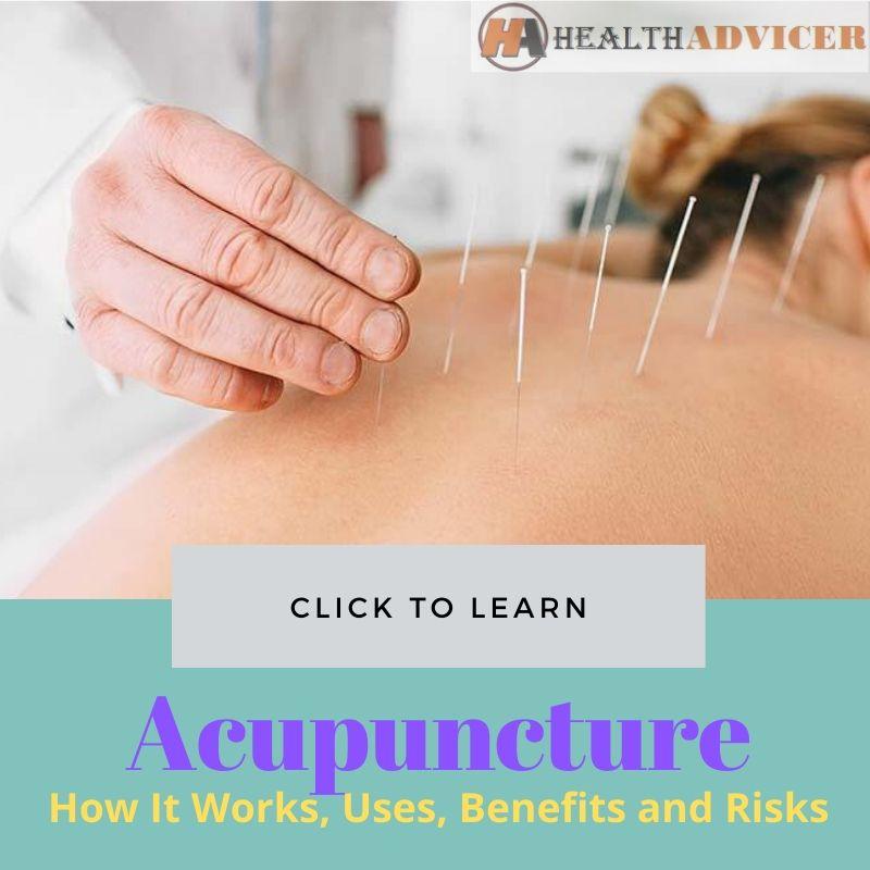 Acupuncture Pictures