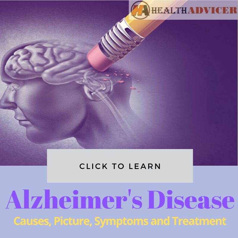 Alzheimer Disease Picture