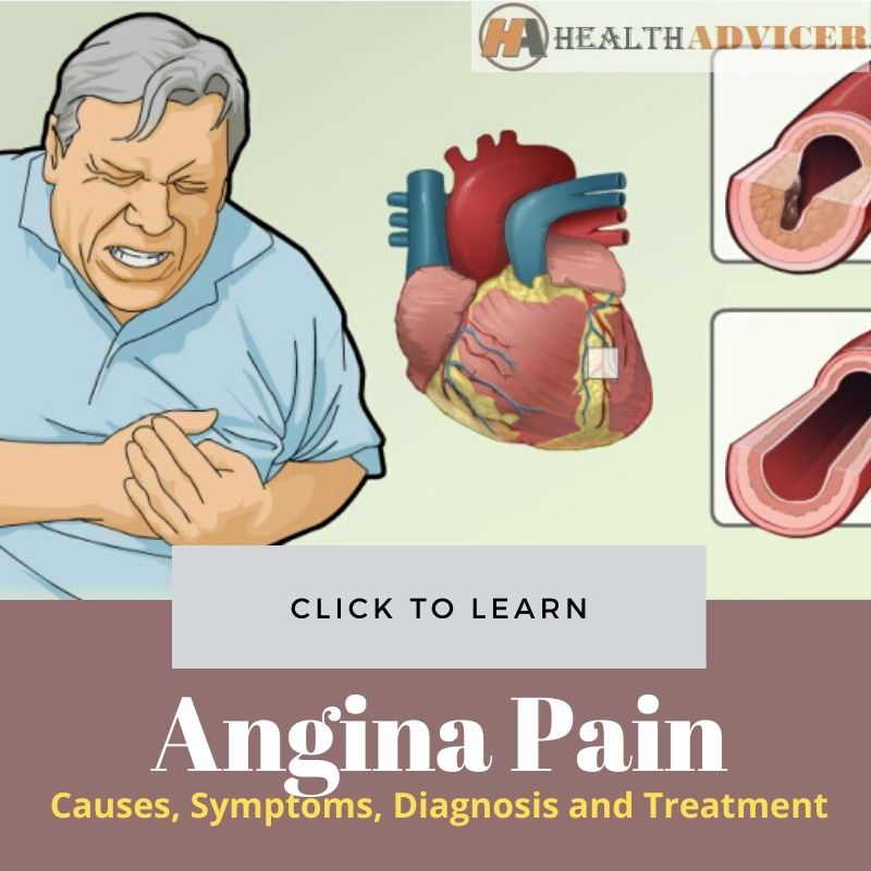 Angina Pain Picture