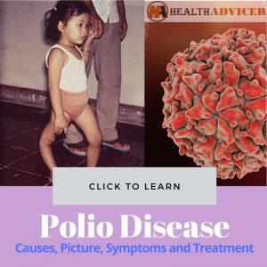 Polio Disease Picture