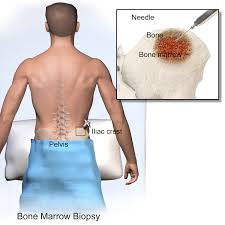 Bone Marrow Test