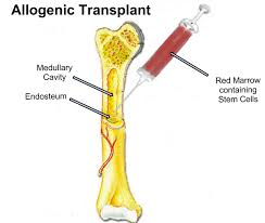 Allogeneic Transplants