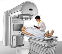 External Beam Radiation Therapy