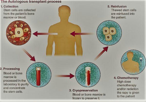 Autologous Transplants