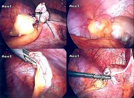 Cholecystectomy