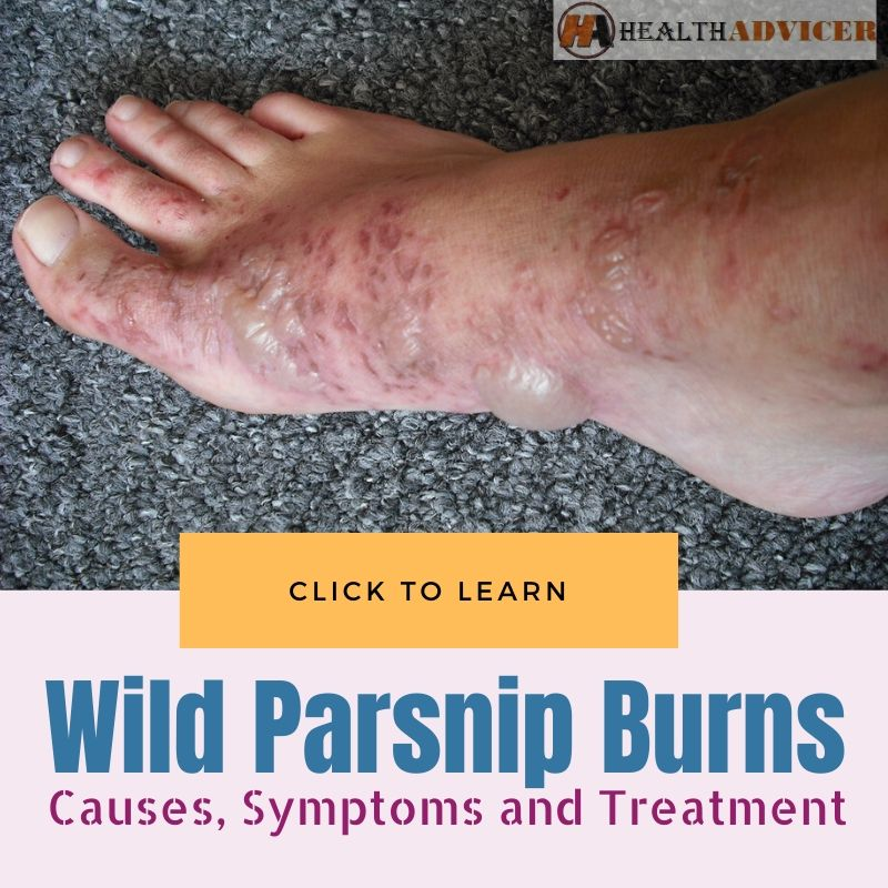 Wild Parsnip Burns
