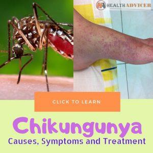 Chikungunya Causes Treatment