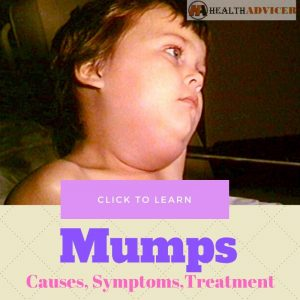 Mumps Causes Treatment