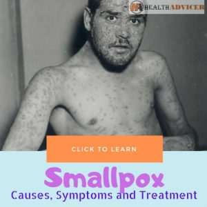 Smallpox Causes Treatment